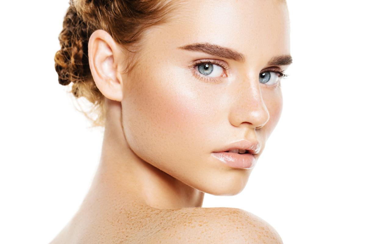 skin pigmentation remove sun spots freckles